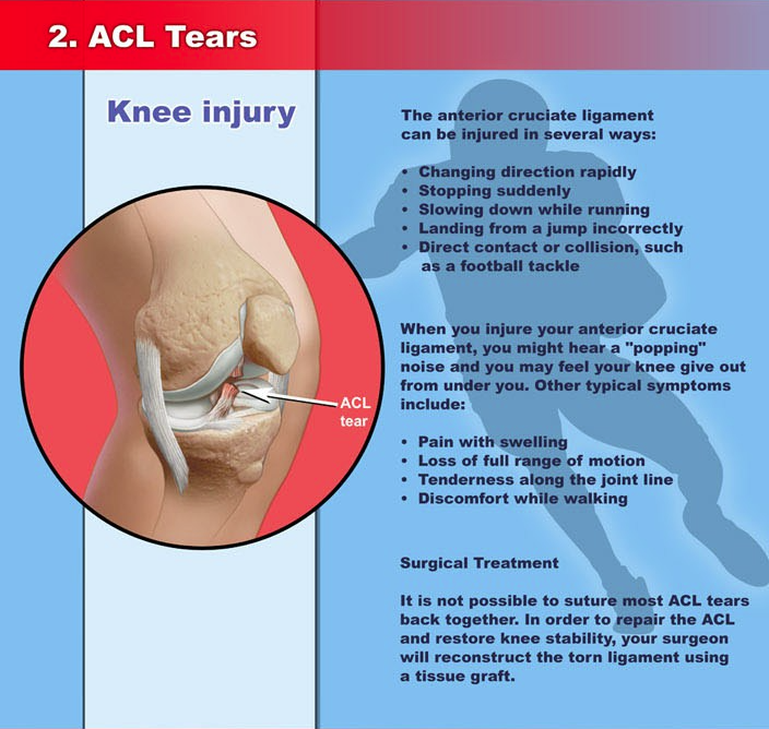 acl injuries essay High school athletes injury prevention zach patinkin high school athlete's injury prevention ever since i can remember, i have been playing sports - acl injuries - paper introduction.